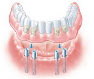 Dentures With Implants The SynCone Treatment From Dentist Near Norman OK